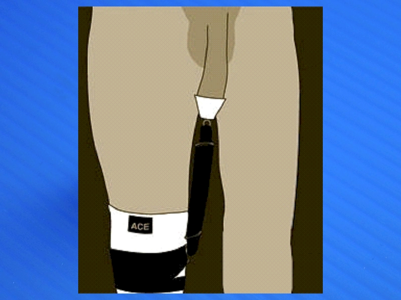 Ace Knee Brace worn for strapping comfort