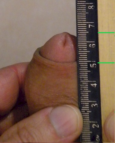 With the skin forced up while erect there are 14mm of glans showing